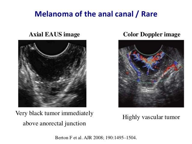 endorectal and endoanal ultrasound technique And 3d endoanal ultrasound and compare the two techniques 2) determine the   atlas of endoanal and endorectal ultrasonography springer italy, milan:.