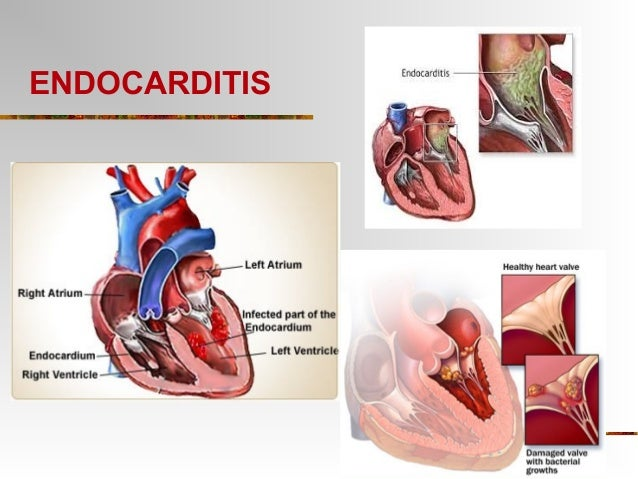 Endocarditis Related K...