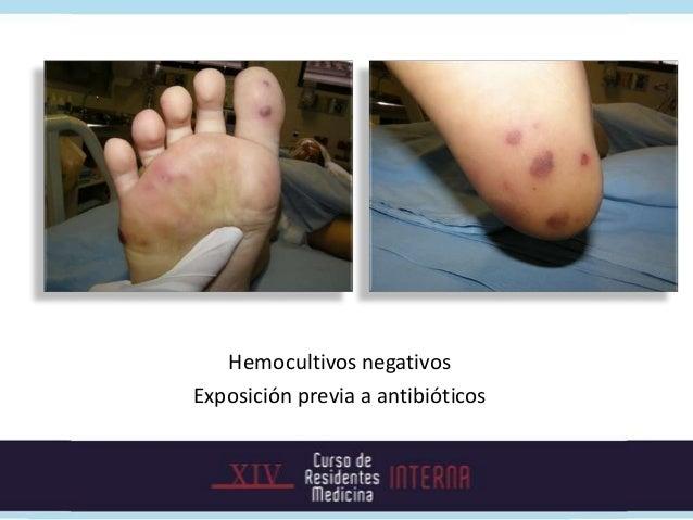 Manifestaciones clínicasSíntomas generales   Síntomas derivados de:• Fiebre 90%         • Enfermedad endocárdica• Artralgi...