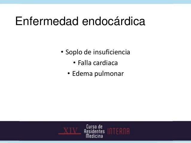 Búsqueda de enfermedad metastásica        Abscesos                    Espondilodiscitis       esplénicos        Abscesos  ...