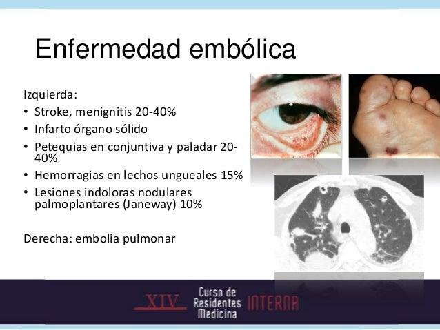 Complicaciones                                     Manejo: reparo quirúrgico  Falla cardiaca 50%   Embolia 10 – 50%       ...