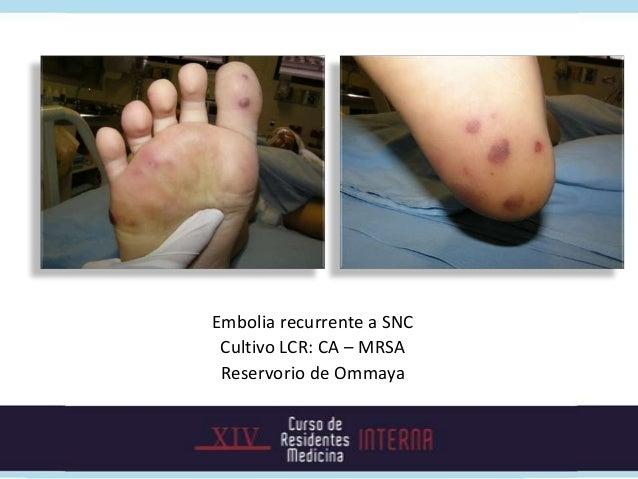 Evolución• Respuesta clínica dentro de la primera semana• Dos set de hemocultivos de control luego de 48 horas de  terapia...