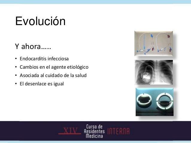 Válvula nativa1. La válvula mitral es la más afectada hasta   en un 40% de los casos2. Las características más comunes son...