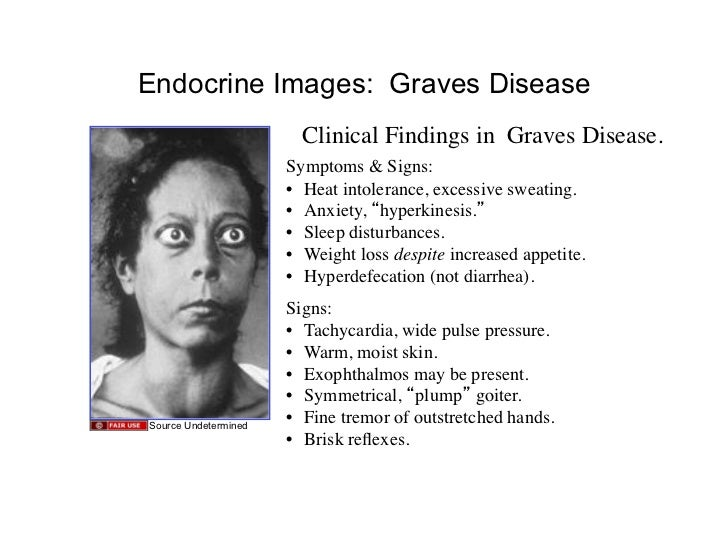 Images of Endocrine Disorders