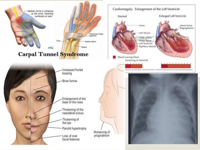 Enlarged pituitary gland facial pain