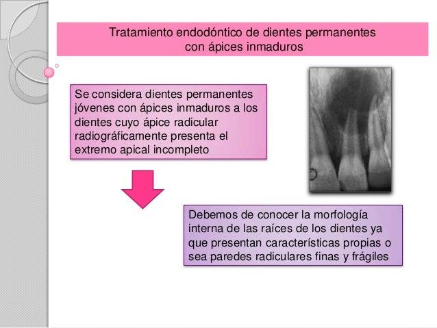 Tratamiento endodóntico de dientes permanentes                   con ápices inmadurosSe considera dientes permanentesjóven...