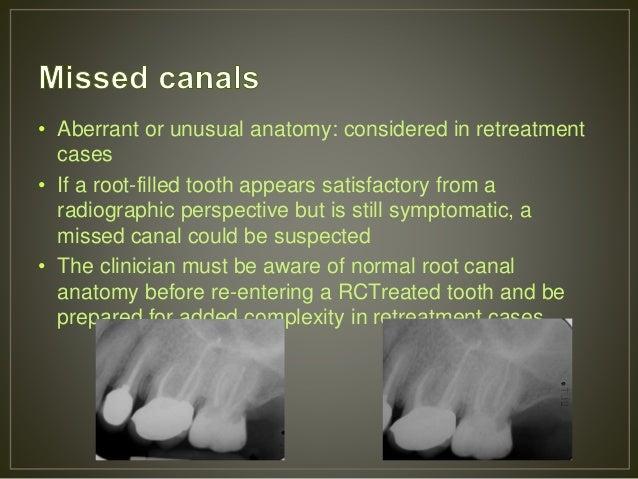 Endodontic Failures