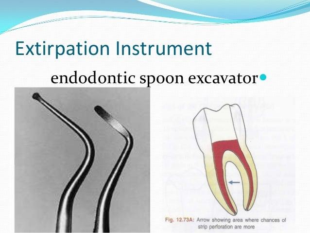 Extirpation Instrument   endodontic spoon excavator