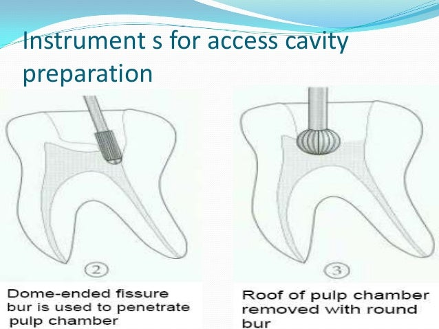 Instrument s for access cavitypreparation