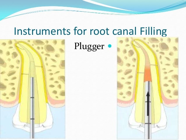 Instruments for root canal Filling             Plugger 