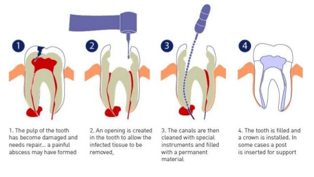 Root Canal Treatment,Endodontics oh Root Canal Treatment,Endodontics
