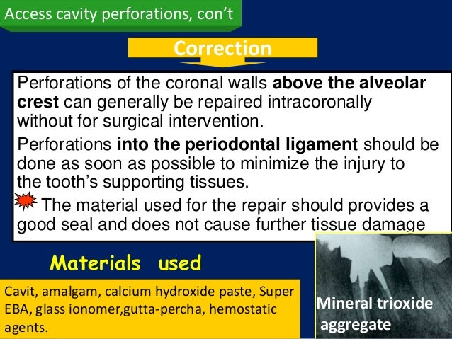 Access cavity perforations, con't                          Correction Perforations of the coronal walls above the alveolar...
