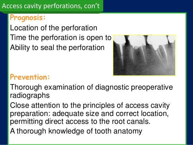 Access cavity perforations, con't  Prognosis:  Location of the perforation  Time the perforation is open to contamination ...