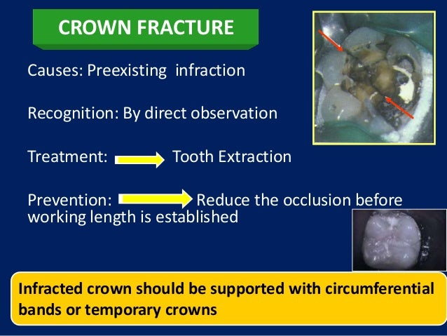 CROWN FRACTURE Causes: Preexisting infraction Recognition: By direct observation Treatment:         Tooth Extraction Preve...