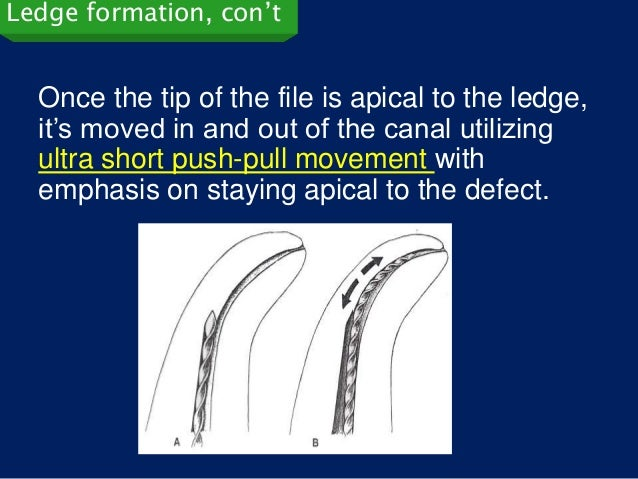 Ledge formation, con't  Once the tip of the file is apical to the ledge,  it's moved in and out of the canal utilizing  ul...