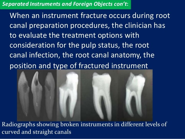 Separated Instruments and Foreign Objects con't:  When an instrument fracture occurs during root  canal preparation proced...