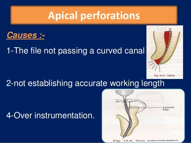 Apical perforations, con'tDetection•patient suddenly complains of pain during treatment.•The canal becomes flooded with he...