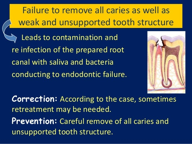 Failure to remove all caries as well as weak and unsupported tooth structure   Leads to contamination andre infection of t...