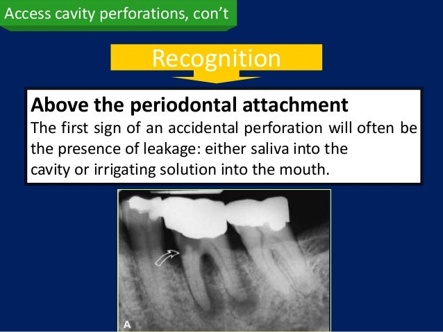 Access cavity perforations, con't                     Recognition   Above the periodontal attachment   The first sign of a...