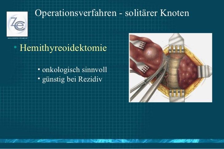 Endokrinchirurgie Update