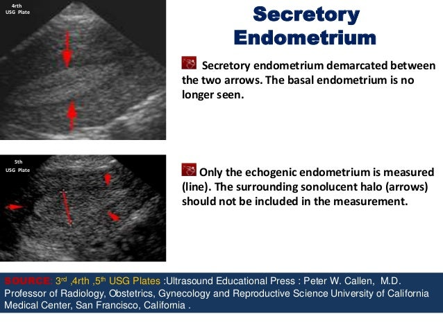 Radiometric dating is not accurate ultrasound