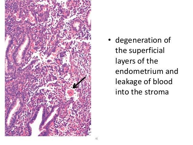 Breakdown pathology stromal Endometrial glandular