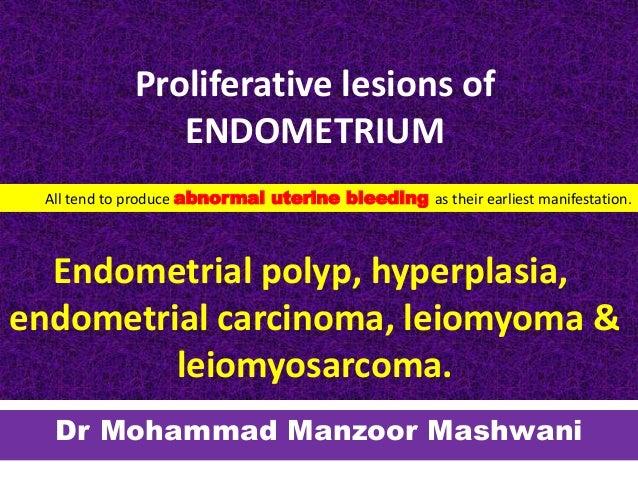 Proliferative lesions of ENDOMETRIUM Endometrial polyp, hyperplasia, endometrial carcinoma, leiomyoma & leiomyosarcoma. Dr...