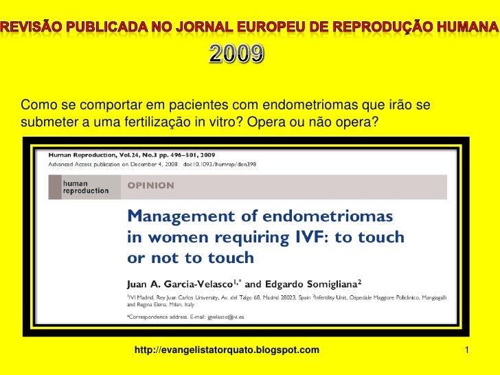 1<br />Revisão publicada no Jornal Europeu de Reprodução Humana<br />2009<br />Como se comportar em pacientes com endometr...