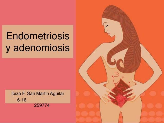 Endometriosis y adenomiosis Ibiza F. San Martin Aguilar 6-16 259774