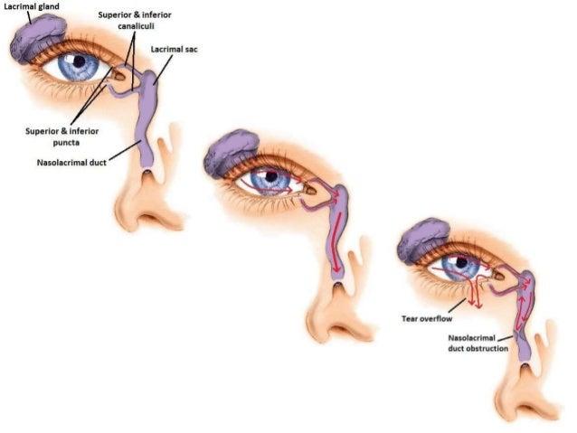 Endoscopic (DCR) Dacryocystorhinostomy