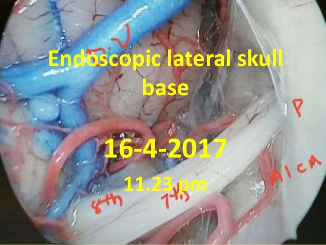 Endoscopic lateral skull base 16-4-2017 11.23 pm