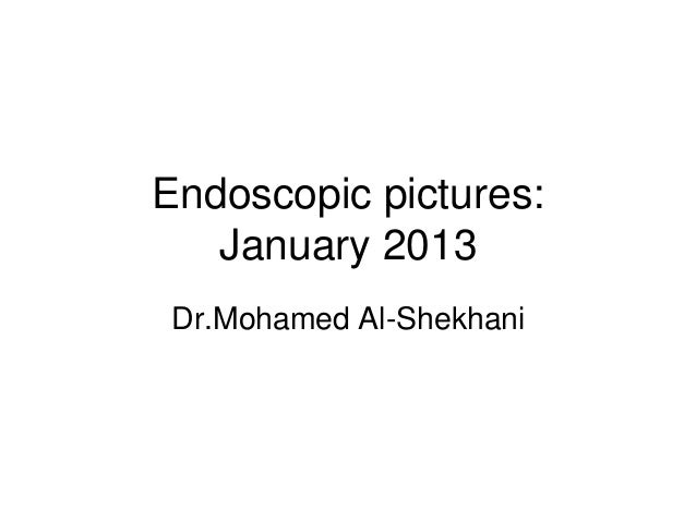 Endoscopic pictures:   January 2013Dr.Mohamed Al-Shekhani