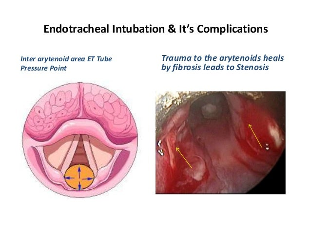 Endotracheal Intubation Amp Its Complications
