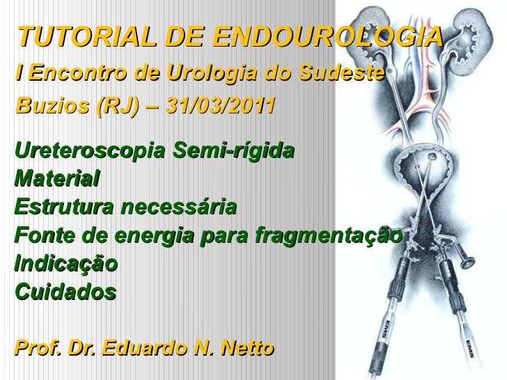 TUTORIAL DE ENDOUROLOGIA I Encontro de Urologia do Sudeste Buzios (RJ) – 31/03/2011 Ureteroscopia Semi-rígida Material Est...