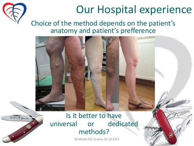 Endovenous Treatment For Varicose Veins The First Choice
