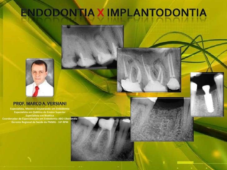 ENDODONTIA XIMPLANTodontia<br />Prof. Marco A. Versiani<br />Especialista, Mestre e Doutorando em Endodontia<br />Especial...