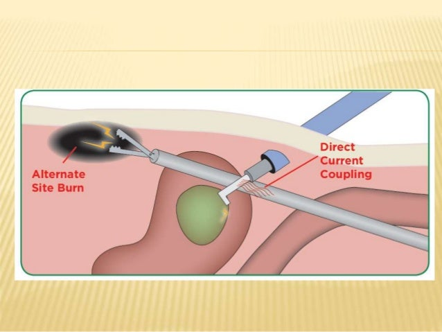 Energy Devices In Surgery