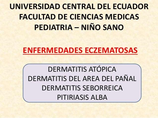 UNIVERSIDAD CENTRAL DEL ECUADOR FACULTAD DE CIENCIAS MEDICAS PEDIATRIA – NIÑO SANO ENFERMEDADES ECZEMATOSAS DERMATITIS ATÓ...