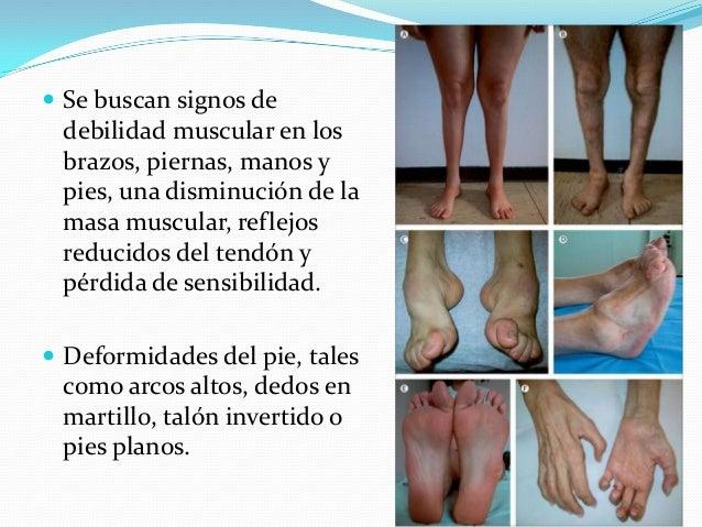  La terapia física y ocupacional, el tratamiento preferido para CMT, incluye el ejercicio para el fortalecimiento muscula...