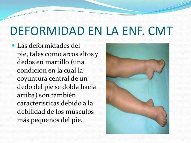 DEFORMIDAD EN LA ENF. CMT  Las deformidades del pie, tales como arcos altos y dedos en martillo (una condición en la cual...