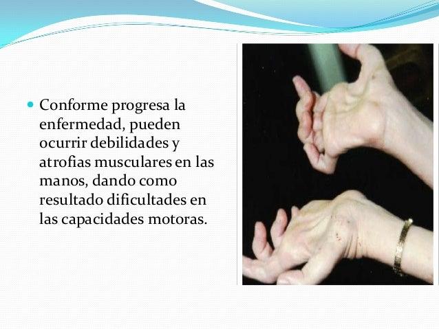  Conforme progresa la enfermedad, pueden ocurrir debilidades y atrofias musculares en las manos, dando como resultado dif...