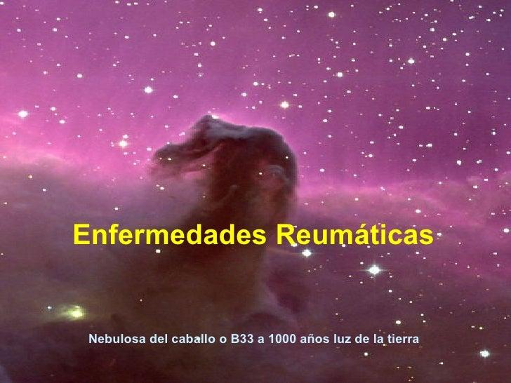 Enfermedades Reumáticas Nebulosa del caballo o B33 a 1000 años luz de la tierra