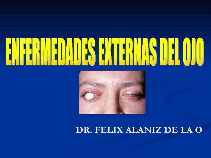 ENFERMEDADES EXTERNAS DEL OJO DR. FELIX ALANIZ DE LA O