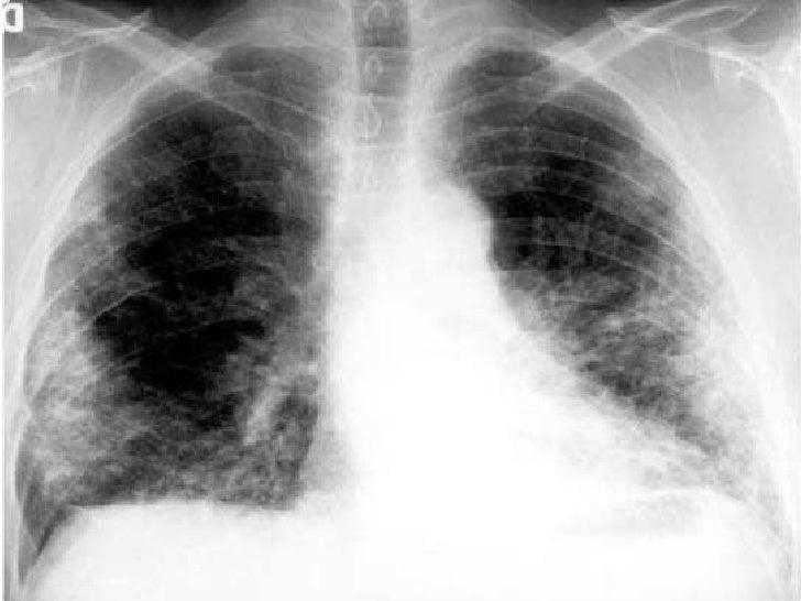 Hipergammaglobulinemia.</li></ul>Relacionados a determinadas enfermedades:<br />Eosinofilia: Eosinofilias pulmonares.<br /...