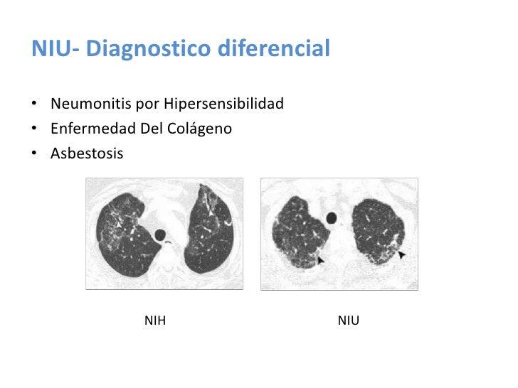 Valora la extensión de las lesiones parenquimatosas y su naturaleza:</li></ul>Imágenes reticulares indican fibrosis.<br />...