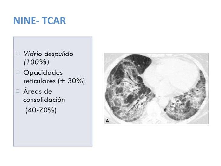 Neumonía Intersticial Usual: NIU<br />Clínica<br />>50 años<br />Crónica<br />Disnea<br />Tos seca<br />75% acropaquía<br ...