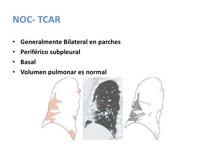 NIU- Diagnostico diferencial<br />Neumonitis por Hipersensibilidad<br />Enfermedad Del Colágeno<br />Asbestosis<br />     ...