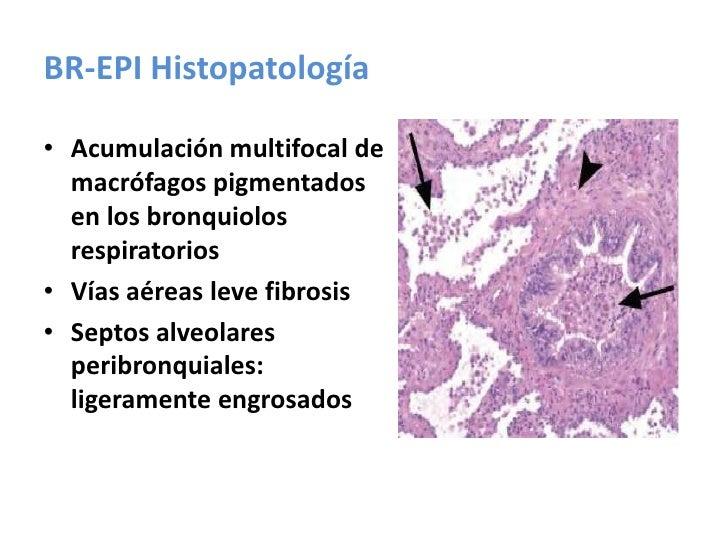 Diagnóstico de FPI (Consenso ERS-ATS 2002) en Ausencia de Biopsia.<br />Am. J. Respir. Crit. Care Med., Volume 165, Number...
