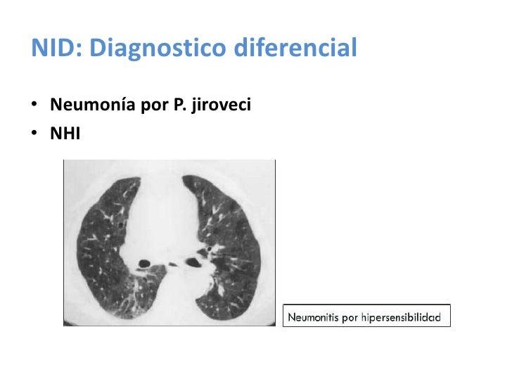 Neumonía Organizativa Criptogenica NOC.<br />Clínica<br />55 años<br />Evolución<3 meses<br />Tos, disnea<br />subaguda,<b...