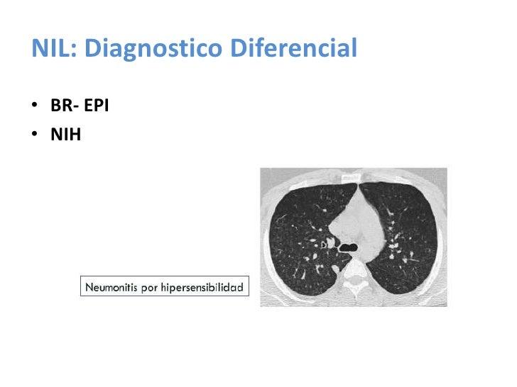 BR-EPI Histopatología<br />Acumulación multifocal de macrófagos pigmentados en los bronquiolos respiratorios<br />Vías aér...